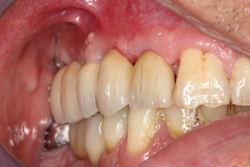Bridge zircone sur implants